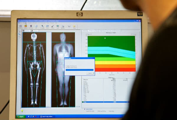 A full-body scan appearing on the screen of a computer linked to a DEXA scanner